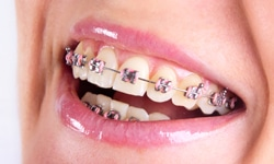 Types Of Braces Orthodontic Partners Reno Nv